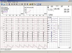 PC EKG